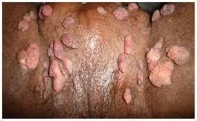 Genital Warts
