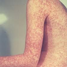 German Measles