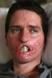 Group A Streptococcal Infection