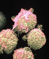Hairy cell leukemia (HCL)