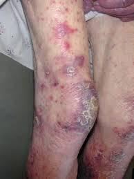 Hairy cell leukemia (HCL)
