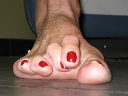 Hammertoe and mallet toe