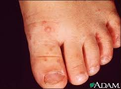 Hand, foot and mouth disease (HFMD)