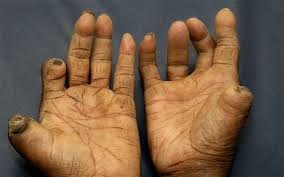tuberculosis and bible leprosy Leprosy stock photos and pictures | getty - getty images.