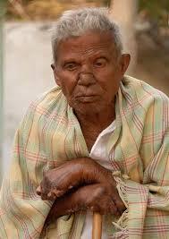 Hansens disease (HD)/ Leprosy