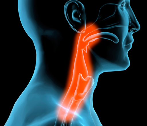 Head and neck cancers