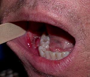 Persian dermatitis idiopathic facial