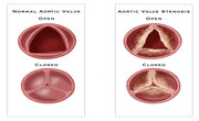 Heart Valve Disease