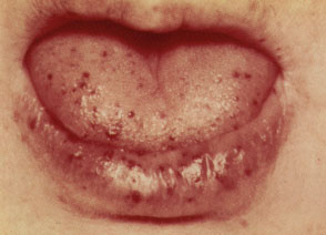 Hereditary hemorrhagic telangiectasia