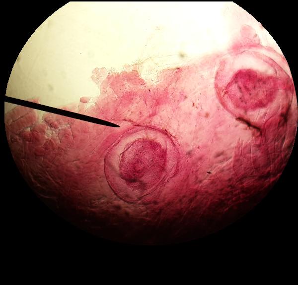 Heterophyiasis