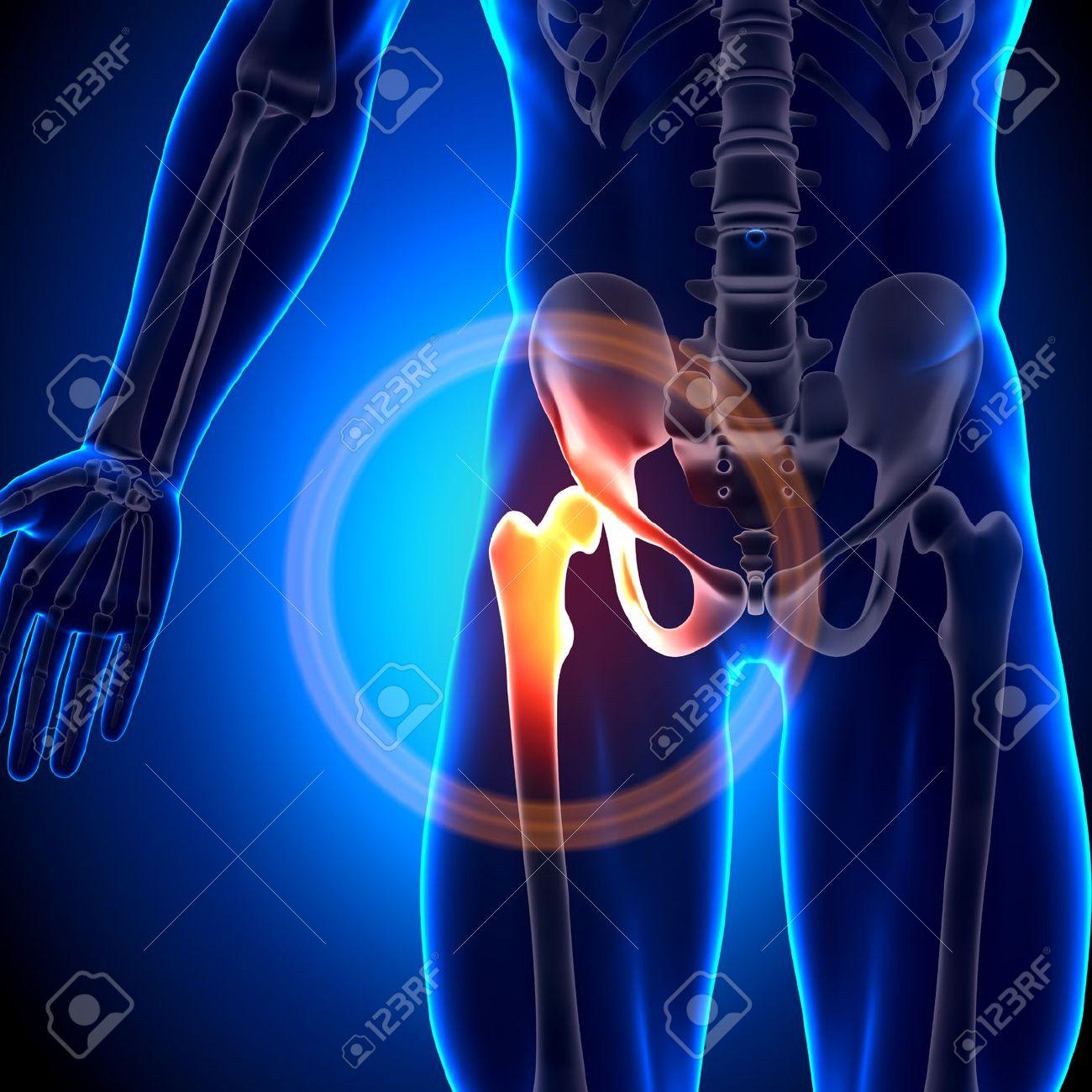 Hip impingement