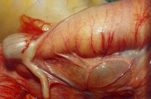 Hirschsprungs disease