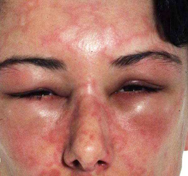 Hives and angioedema