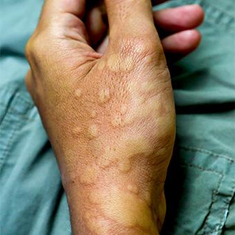 Adults in plantar dermatitis