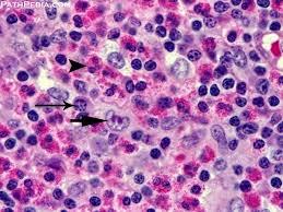 Hodgkins lymphoma