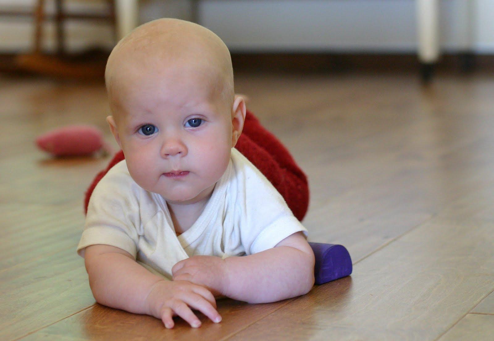 Птоз фото глаза у ребенка