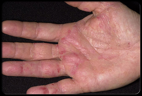 Hot tub rash brazil pdf ppt case reports symptoms for Allergic reaction to hot tub