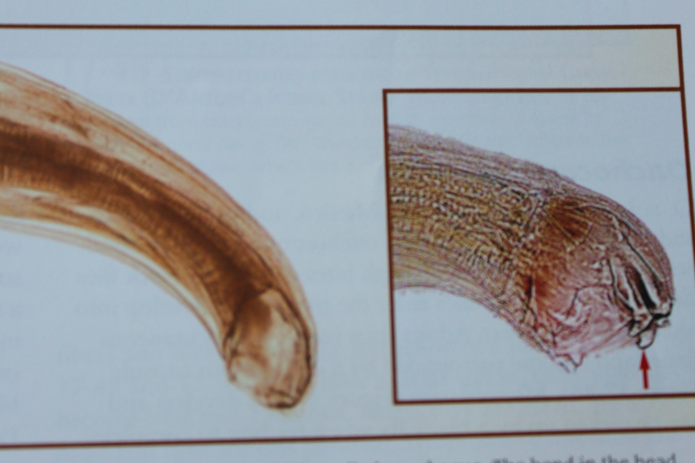Human Hookworm