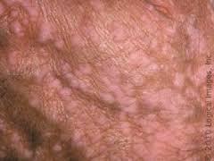 Human Papillomavirus Infection