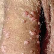 Human Papillomavirus Vaccination
