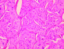 Hurthle cell Cancer