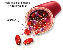 Hyperglycemia in diabetes