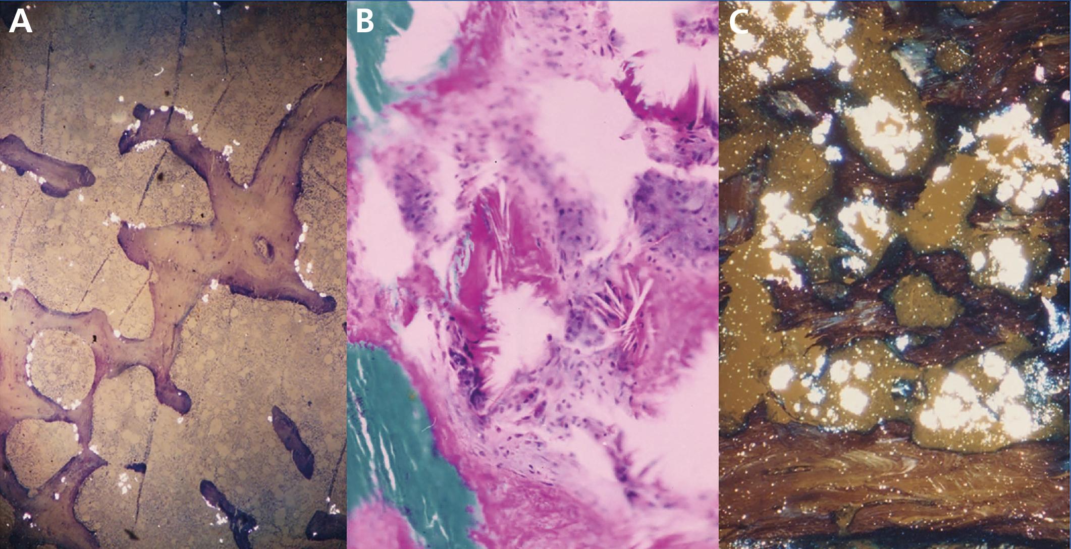 Hyperoxaluria and oxalosis
