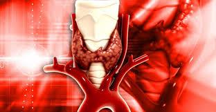 Hypoparathyroidism