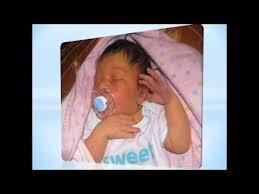 Infant jaundice