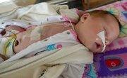 Infant reflux