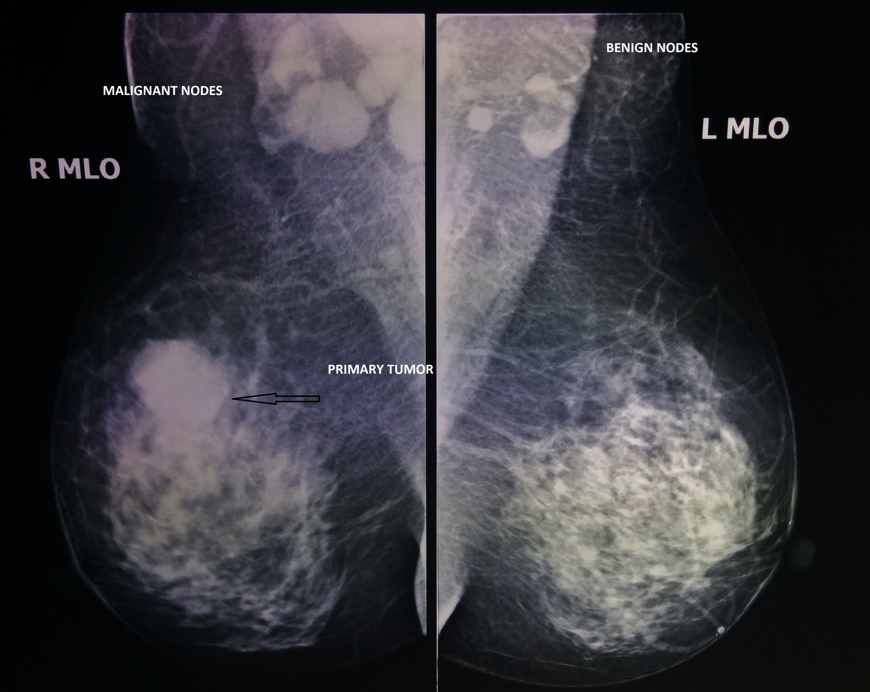Radiation for benign breast tumors very