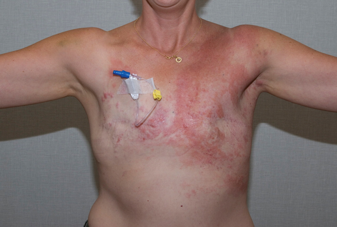 inflammatory carcinoma breast cancer