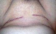 Inguinal hernia