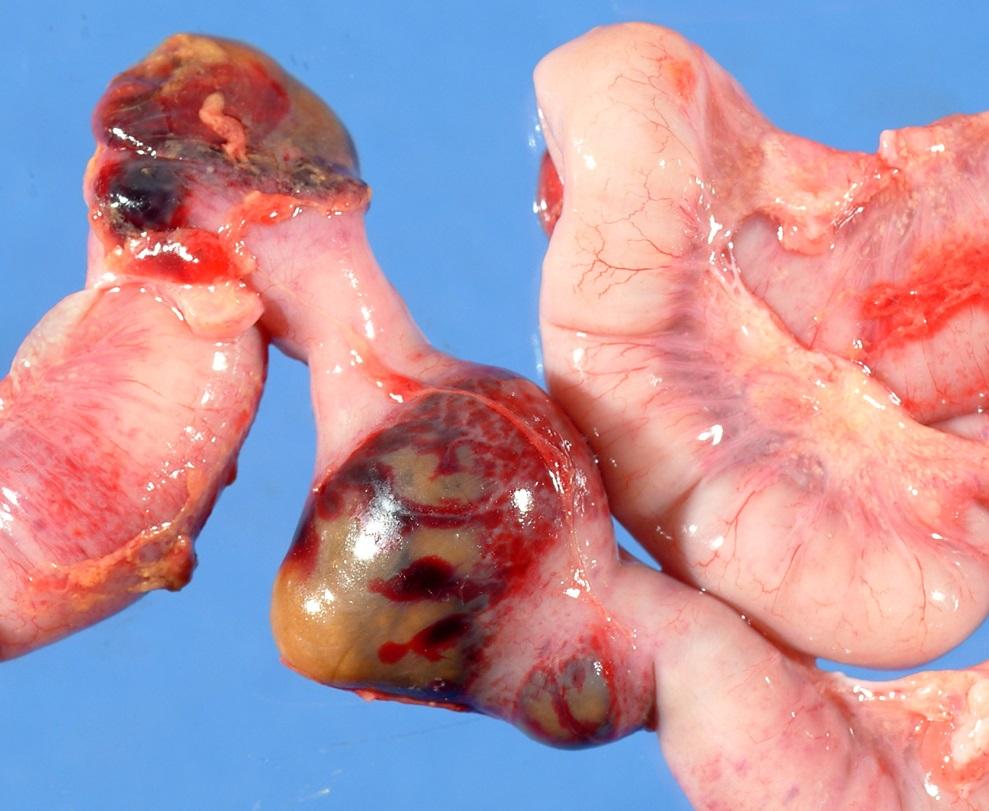 Intestinal ischemia