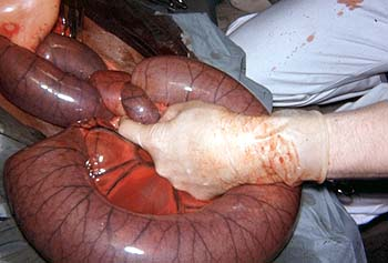 Intestinal ischemia