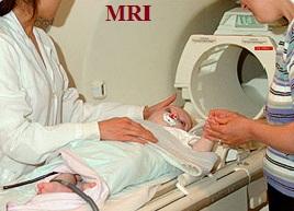 Intracranial hematoma