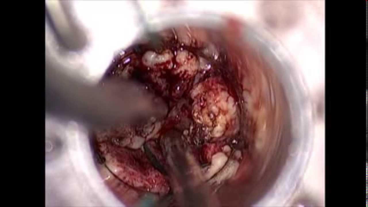 Intracranial Hematoma Brazil Pdf Ppt Case Reports