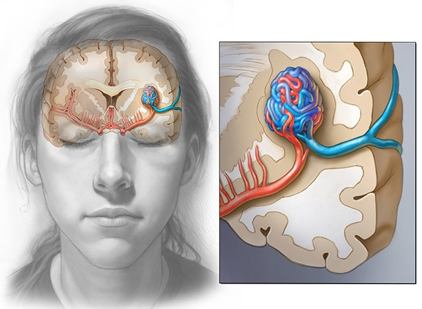 Intracranial venous malformations