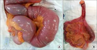 Intussusception