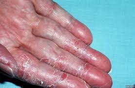Itchy Skin (Pruritus)