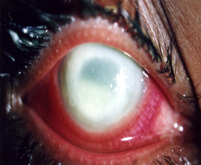 Keratitis | Norway| PDF | PPT| Case Reports | Symptoms | Treatment