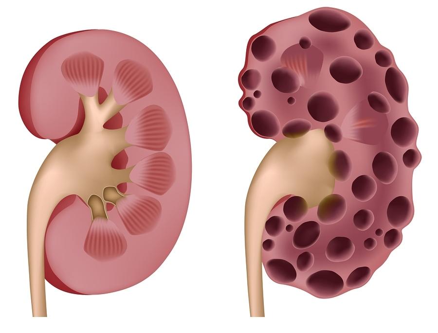 Kidney Disease