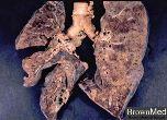 Klebsiella pneumonia