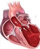 Left Ventricular hypertrophy