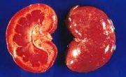 Leptospirosis