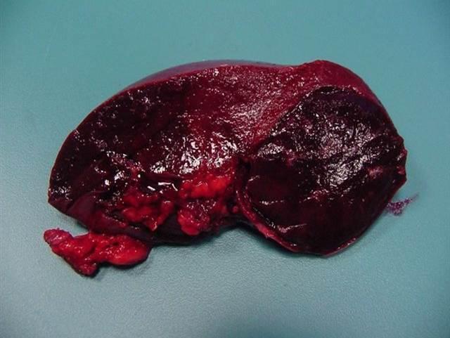 liver hemangioma india pdf ppt case reports