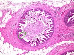 Lobular carcinoma in situ