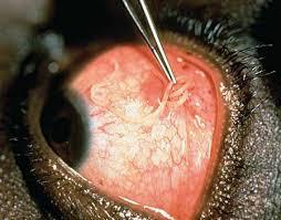loiasis disease