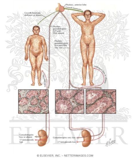 Male hypogonadism