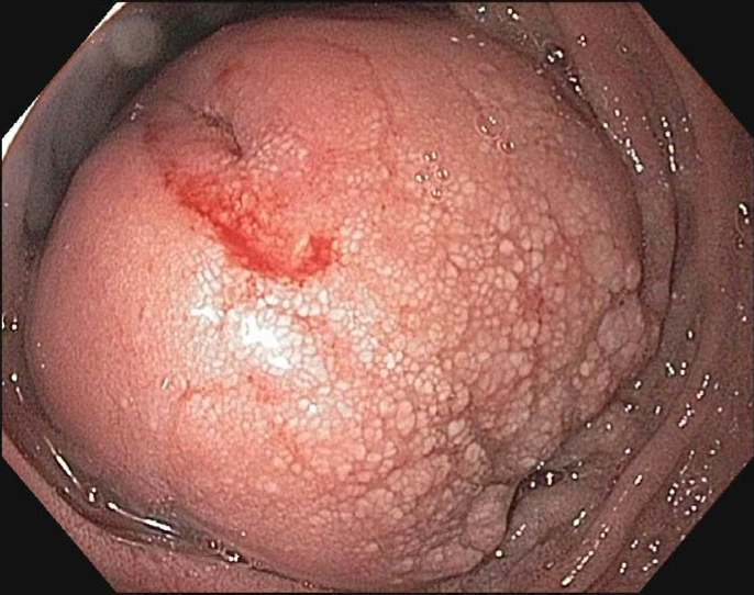 Malignant peripheral nerve sheath tumors